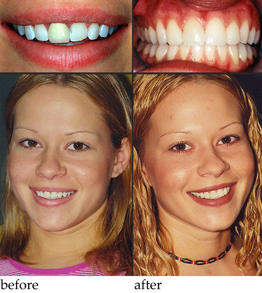 Braces Before And After Gap | www.imgkid.com - The Image ...