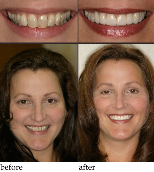 Gallery Our Smiles Before And After Dr Benjamin