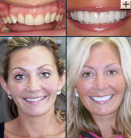 Cosmetic Dentistry Dr Benjamin Cosmetic Amp General