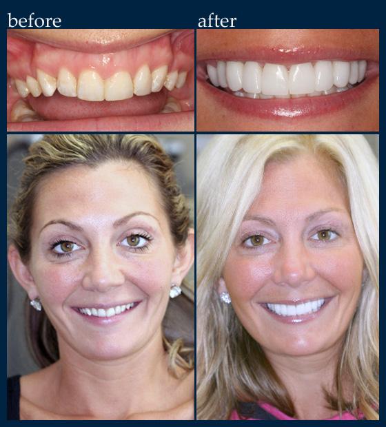 Cosmetic Dentistry - Dr  Benjamin: Cosmetic & General