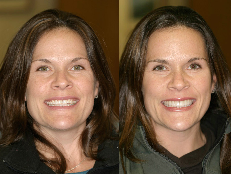 Gallery Dr Benjamin Cosmetic Amp General Dentist For