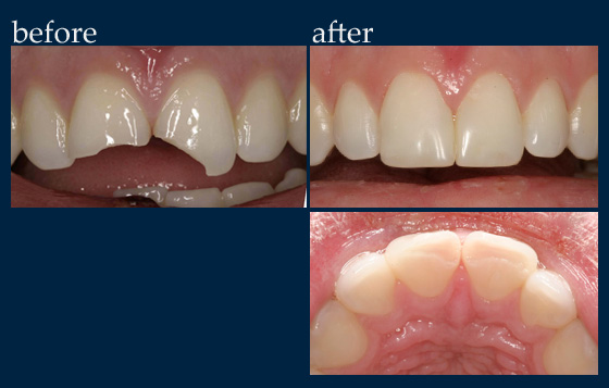 General Dentistry Dr Benjamin Cosmetic Amp General