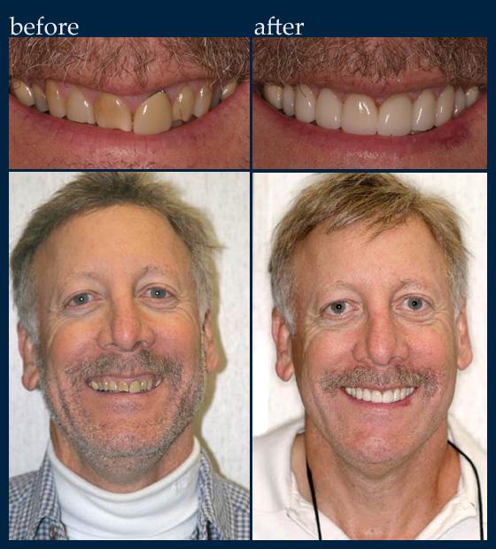Cosmetic Dentistry Dr Benjamin Cosmetic Amp General
